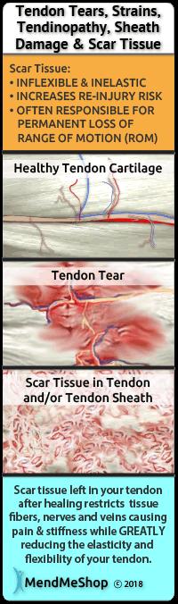 tendinopathy scar tissue chronic damage hip