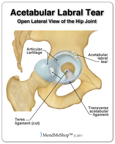 can tight hip flexors cause si joint pain