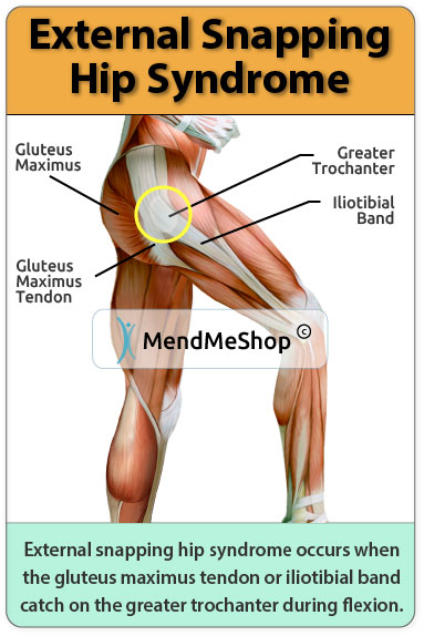 external snapping hip syndrome occurs when the it band or gluteus maximus tendon catch on the
