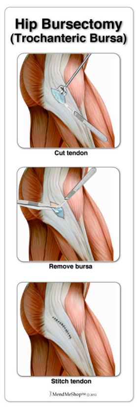 Hip Bursitis Information And Treatments