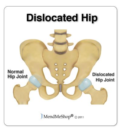 Hip Dislocation Information