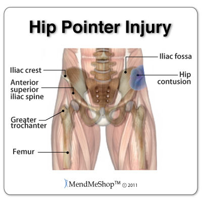 hip injury: