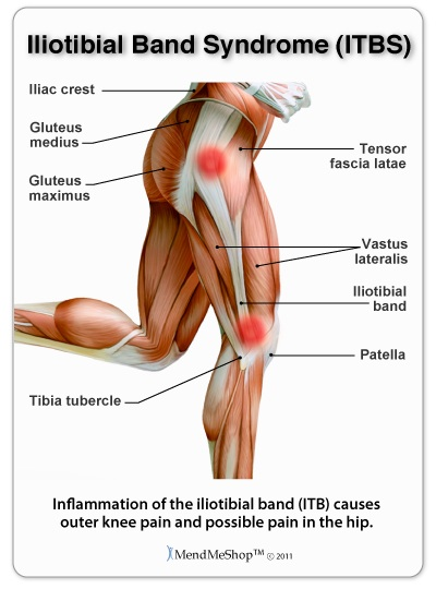 iliotibial band syndrome (itbs), Cephalic Vein