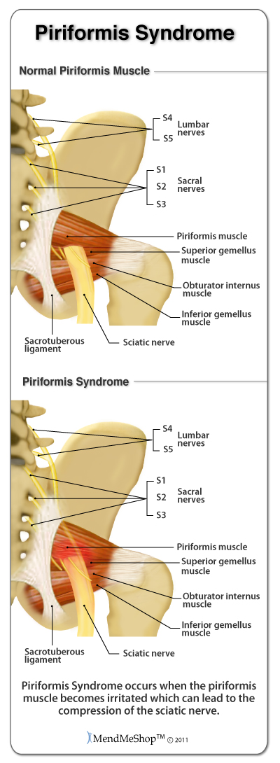 Facts about Sciatica and Filing for Disability