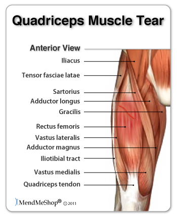Treating Hip Muscle Strains and Tears