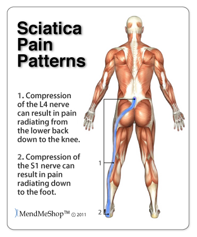 Sciatica Pain Pattern