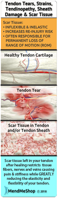 tendinopathy scar tissue chronic damage hip